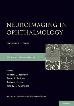 E-Book (pdf) Neuroimaging in Ophthalmology von Michael C. Johnson, Bruno Policeni, Andrew G. Lee