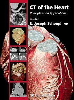 Cover: https://exlibris.azureedge.net/covers/9781/5882/9303/9/9781588293039xl.jpg