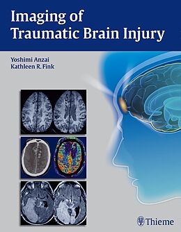 Fester Einband Imaging of Traumatic Brain Injury von Yoshimi Anzai, Kathleen R. Tozer-Fink