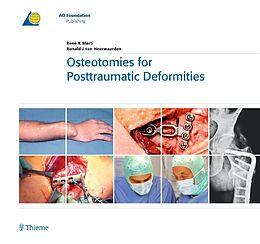 Fester Einband Osteotomies for Posttraumatic Deformities von Ronald J. van Heerwaarden