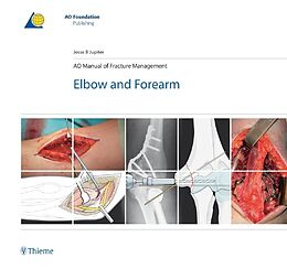 Fester Einband AO Manual of Fracture Management von Jesse B. Jupiter
