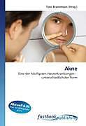 Cover: https://exlibris.azureedge.net/covers/9786/1301/0923/3/9786130109233xl.jpg