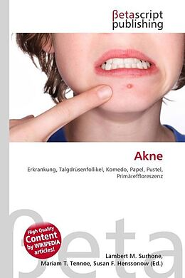 Cover: https://exlibris.azureedge.net/covers/9786/1310/1442/0/9786131014420xl.jpg